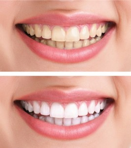 Whiten teeth in 2 days with carrots and baking soda! on unpinning Pinterest